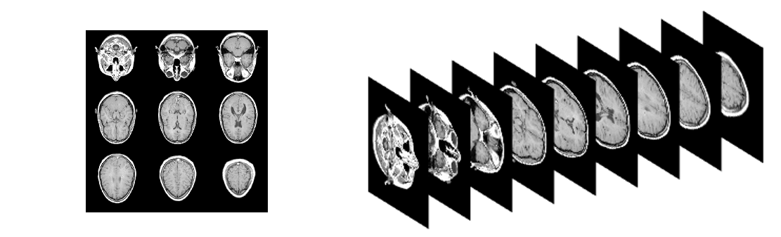 Figure 10: Example 3-D MRI as a Grid (Left) and Stacked (Right) (Source: CCDC ARL).
